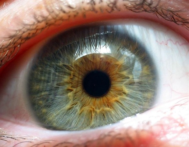 Beyond AREDS2: Vision Improvement in Macular Degeneration using Hormones, Genetics, Methylation, Nutrition and Anti-Oxidative Therapy
